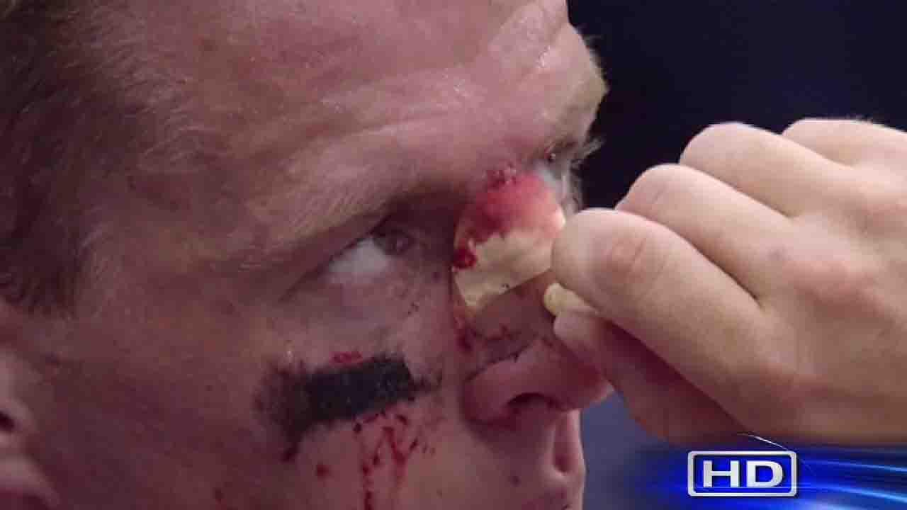 J.J. Watt, bloodied and bruised after busting the bridge of his nose while tackling the Seahawks quarterback