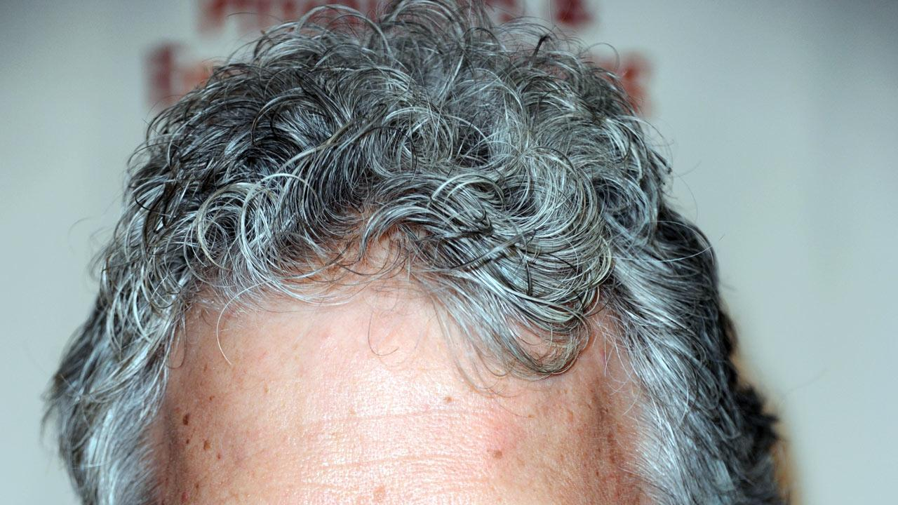 File image of gray hair (Photo by Richard Shotwell/Invision/AP)