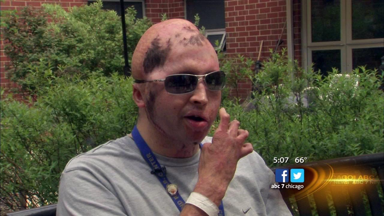 Sgt. wounded in Iraq treated at Hines Blind Rehab Center
